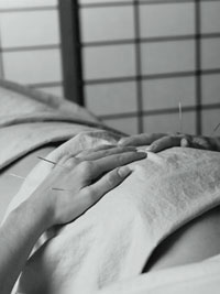 Acupuncture-Pregnancy-88